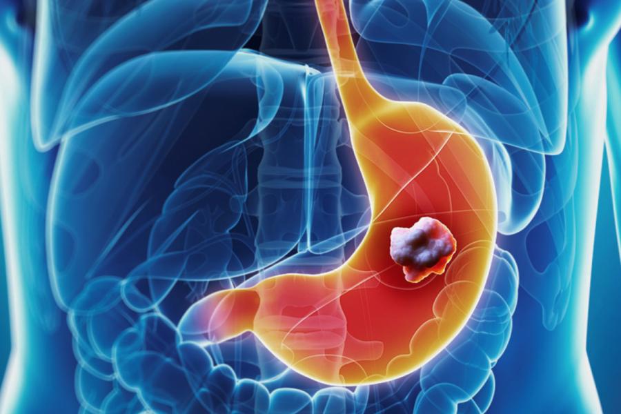 Курение — один из факторов развития рака желудка